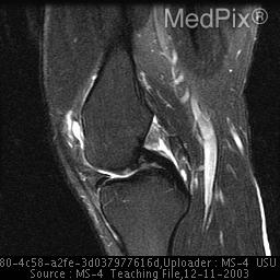 MedPix Case - Partial tear of proximal medial collateral ...