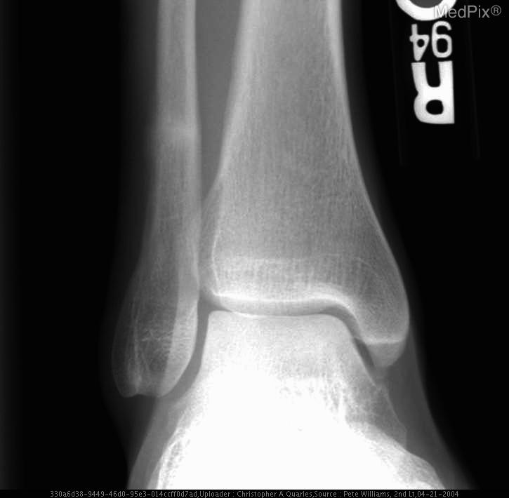 MedPix Case - Stress Fracture of the Distal Fibula and Tibia