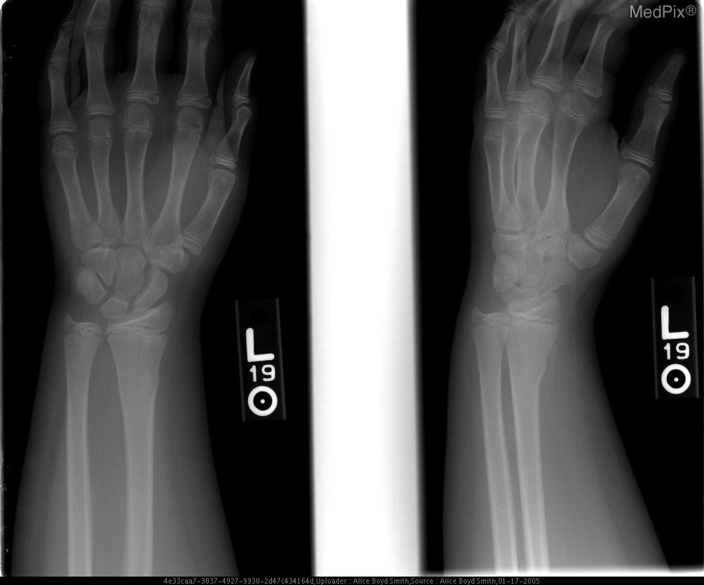 What is a buckle fracture in your wrist