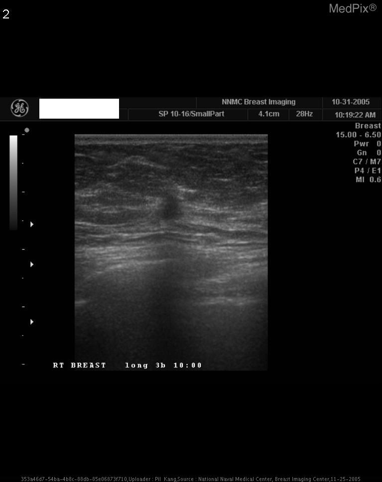 ultrasound characteristics of breast cancer, US - Ultrasound