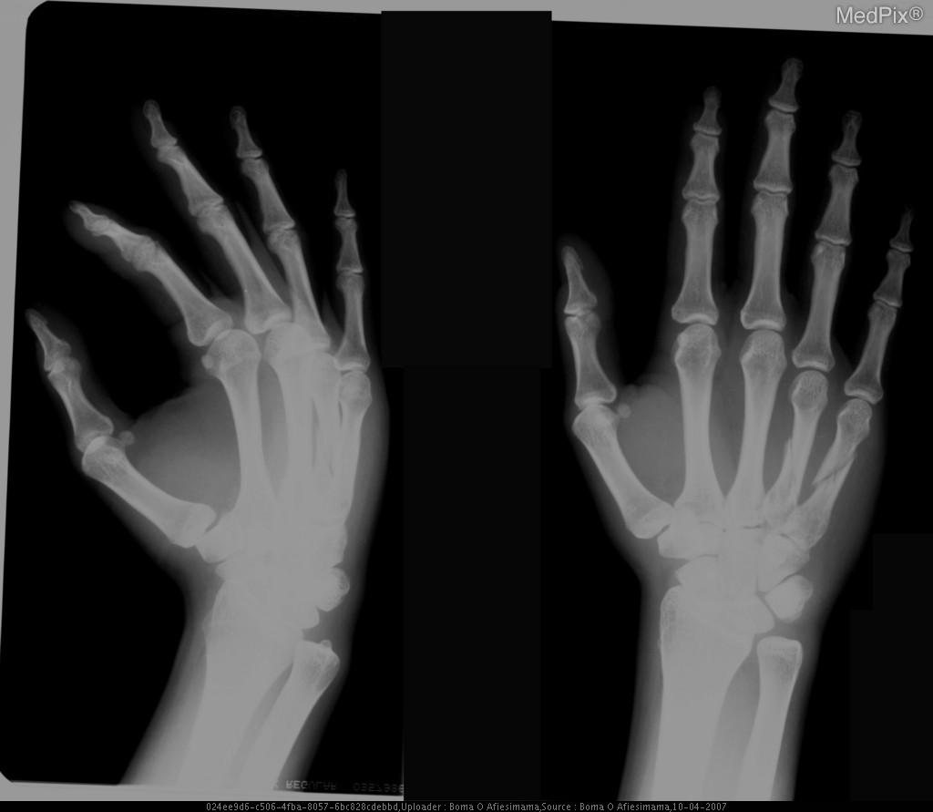 Medpix Case Spiral Fractures Of Right 4th And 5th Metacarpal Shafts